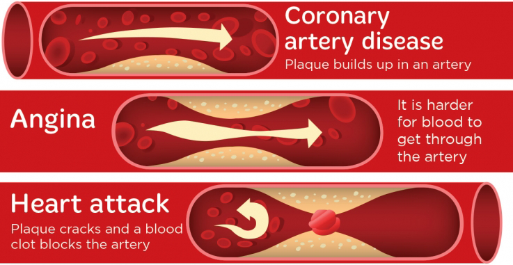 Comparison of coronary artery disease, angina and a heart attack in the arteries. Coronary artery disease - plaque builds up in an artery. Angina, it is harder for blood to get through the artery. Heart attack - plaque cracks and a blood clot blocks the artery.
