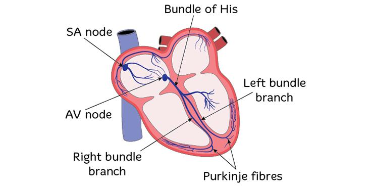 Heart single chamber Single Ventricle