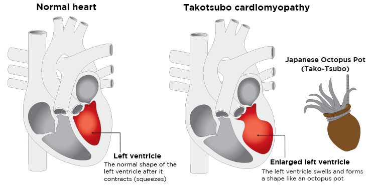 Two hearts. One with a left ventricle the normal shape after it contracts. The other shows an enlarged left ventricle