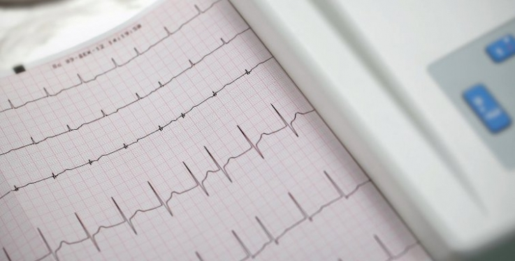 Atrial fibrillation research