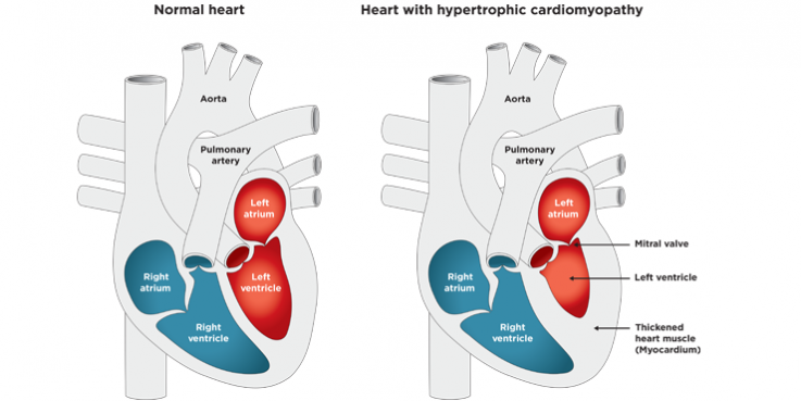 Normal heart and heart with hypertrophic cardiomyopathy showing the left ventricle smaller and the heart muscle (myocardium) thickened around it