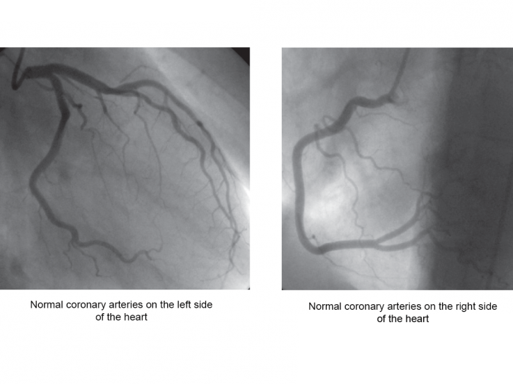 healthy heart arteries look wide on an angiogram