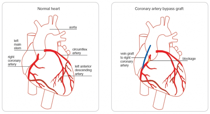 image of a normal heart next to a heart that's had a coronary artery bypass graft. The heart that's had the coronary artery bypass graft shows a blockage and new vein.